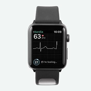 The KardiaBand is an Apple Watch accessory that allows people to make ECG readings on the go